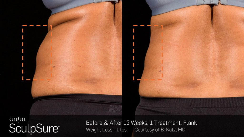 SculpSure before and after photos