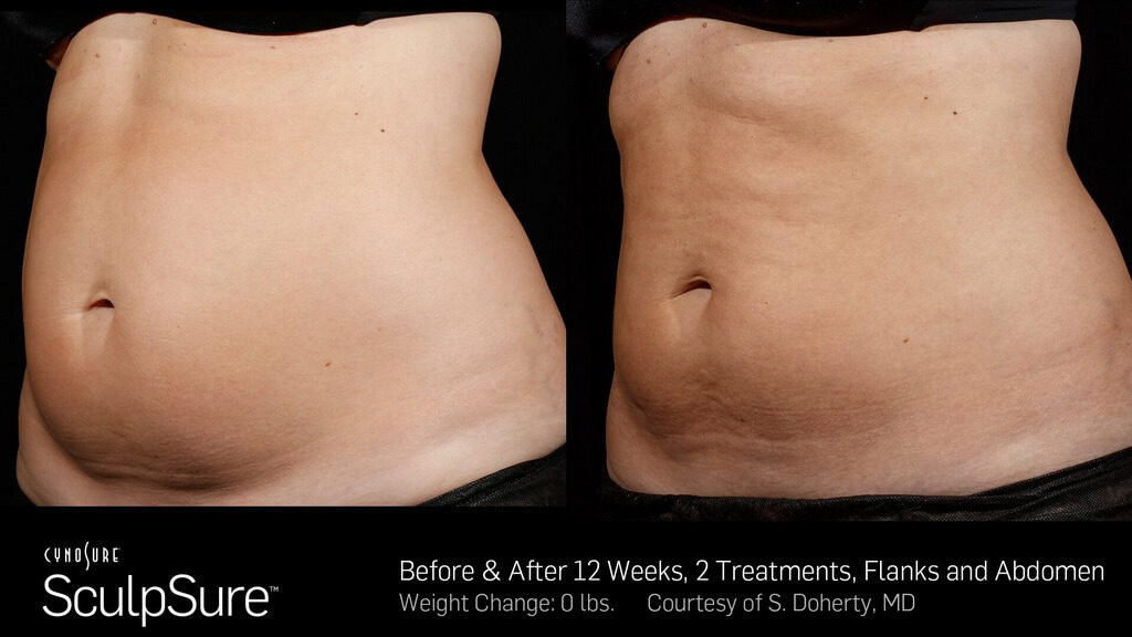 Before and after SculpSure photos